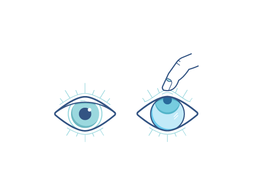 Eye looking up with finger pulling out contacts