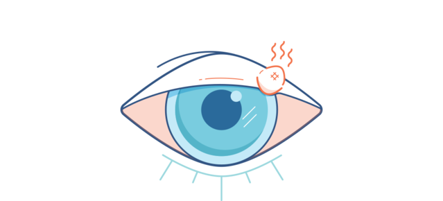 Illustration for a sore red eye with a red, painful stye
