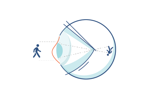 Illustration of an eye with an astigmatism