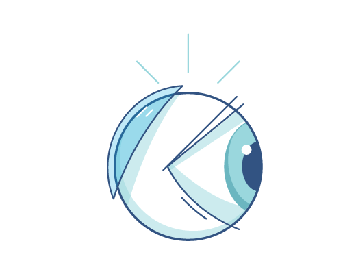 Illustration of contact lenses behind an eye ball
