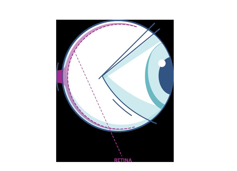 Illustration of any eye highlighting the Retina